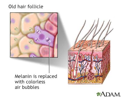 Aged hair follicle