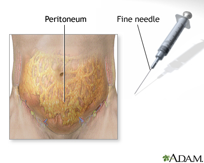 Peritoneal sample