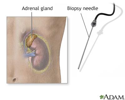 Adrenal gland biopsy