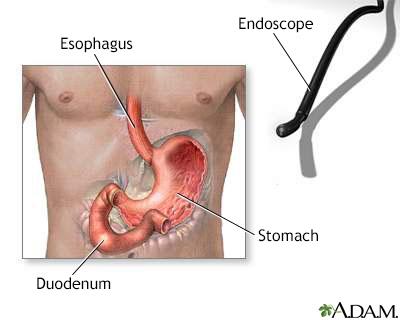 Gastric endoscopy