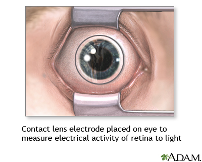 Contact lens electrode on eye