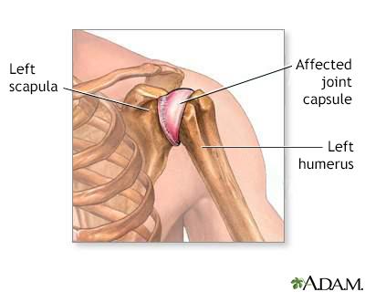 Shoulder joint inflammation