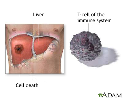 Liver cell death