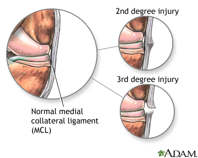 Medial collateral ligament injury
