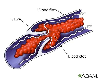 Venous blood clot