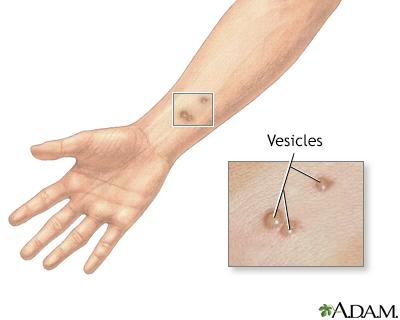 Vesicles