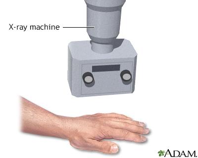 Hand X ray
