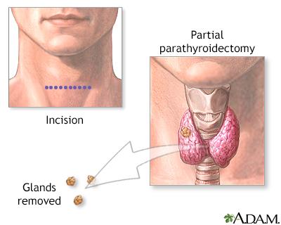 Parathyroidectomy