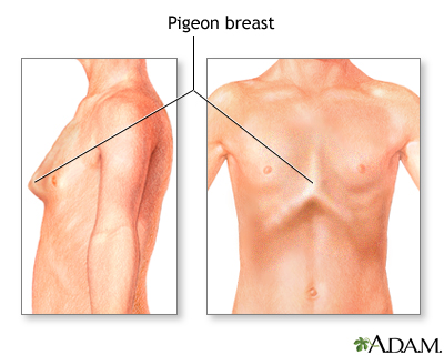 Bowed chest (pigeon breast)