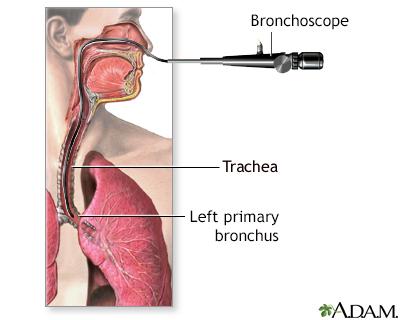 Bronchoscopy