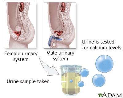Calcium urine test