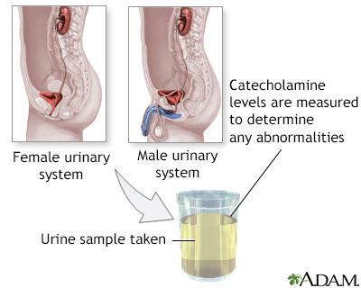Catecholamine urine test