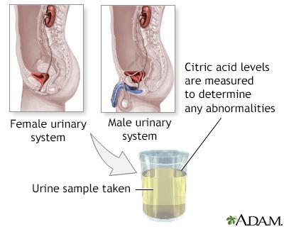 Citric acid urine test