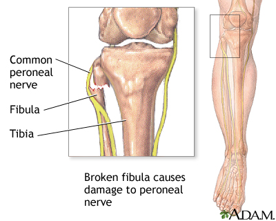 Common peroneal nerve dysfunction