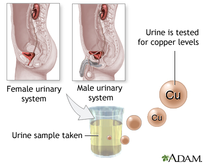 Copper urine test