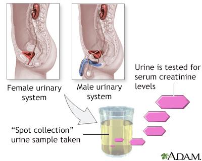 Creatinine urine test