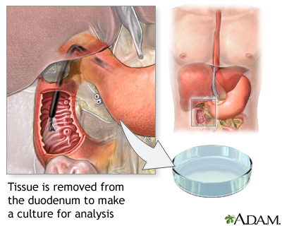 Duodenal tissue culture