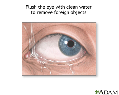 Foreign objects in eye