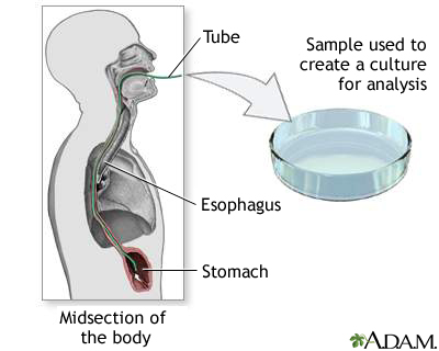 Culture of gastric tissue biopsy