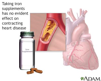 Iron supplements