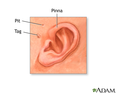 Newborn ear anatomy