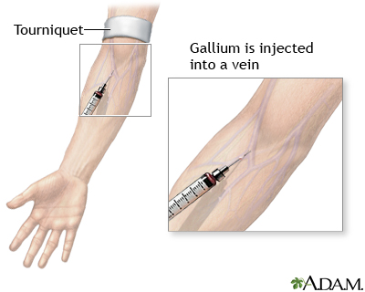 Gallium injection