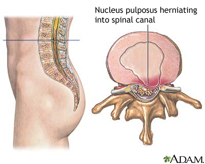 Herniated nucleus pulposis