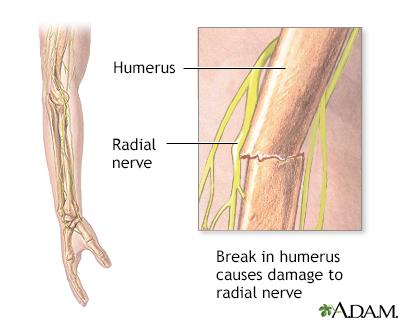 Radial nerve dysfunction