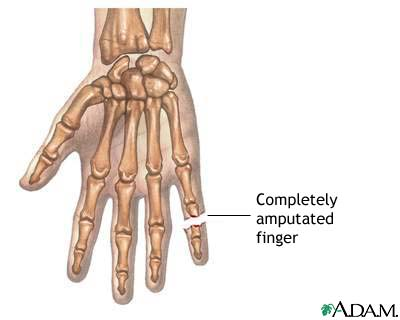 Amputated finger