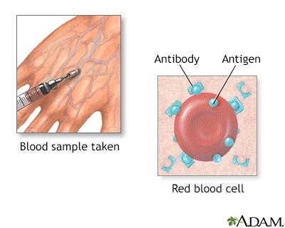 Herpes biopsy