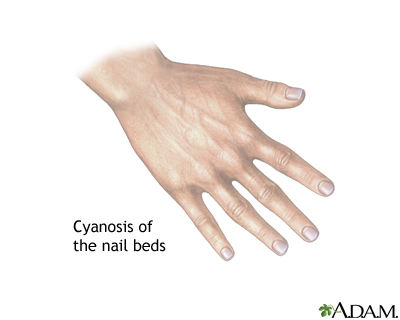 Cyanosis of the nail bed