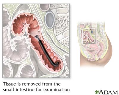 Small intestine tissue sample