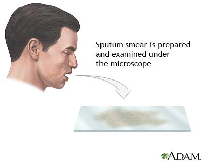 Sputum test