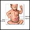 Pyloric stenosis - infant - Series