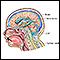 Ventriculoperitoneal shunt - series