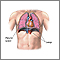 Pneumothorax - series