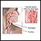 Candidal esophagitis