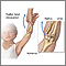 Radial head injury