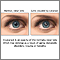 Cataract