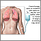 Lung cancer - chemotherapy treatment