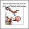 Choking first aid - infant under 1 year - series