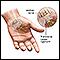 Compression of the median nerve