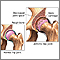 Arthritis in hip