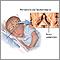 Periventricular leukomalacia