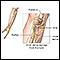 Ulnar nerve damage