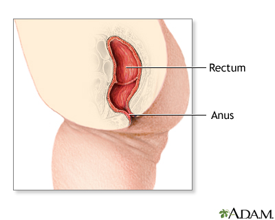 Anal dilation following imperforate anus repair